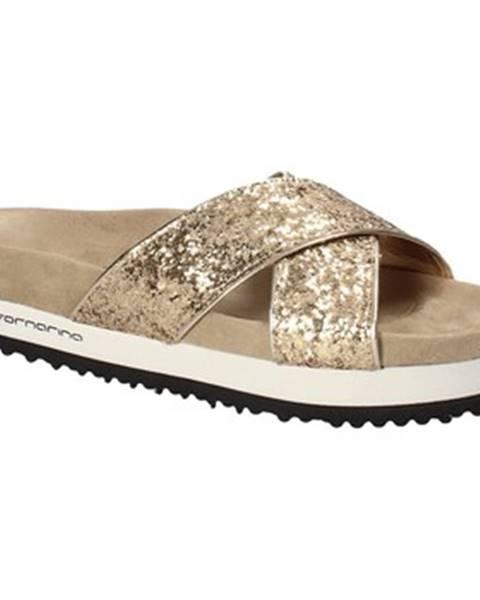 Zlaté topánky Fornarina